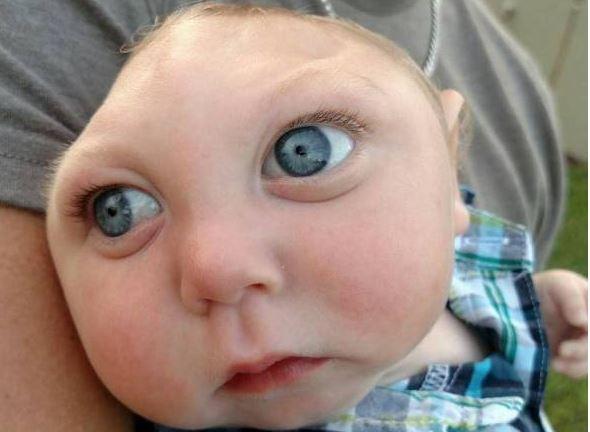 sta je Lissencephaly poremećaj?