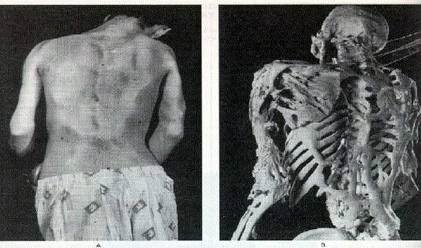 Resultado de imagem para sindrome do homem de pedra