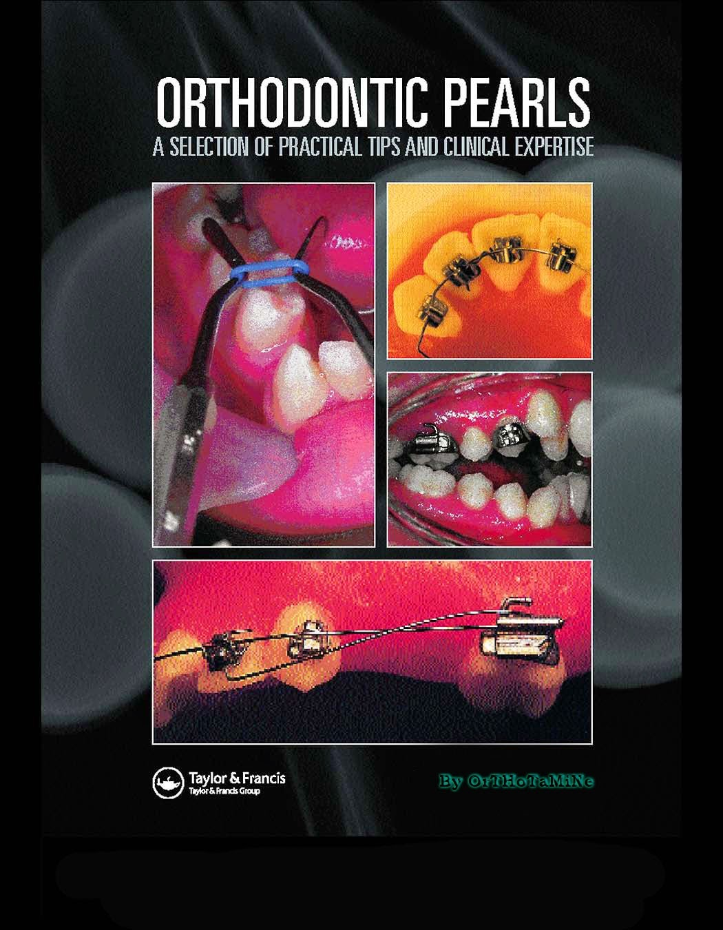 Orthodontic Pearls ... A selection of practical tips and clinical expertise - Eliakim Mizrahi - 2004.pdf