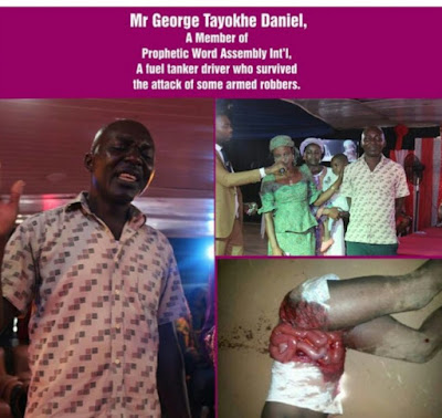 Fuel Tanker Driver Who Armed Robbers Removed His Intestines Shares His Story.