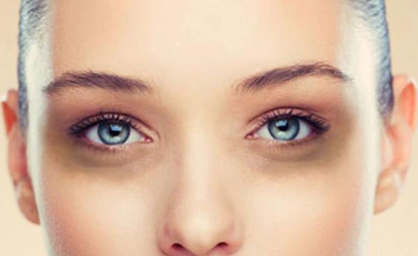Beauty Tips - घरेलु नुस्खे आंखों के नीचे काले धब्बे हटाने के लिए