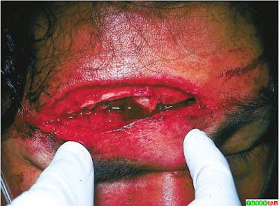 Frontal Sinus Fracture.