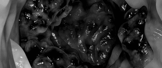 Mio ritocco dell'immagine di un tumore, tratta dal sito www.davidwolfe.com . Non è specificata l'ubicazione del tumore.