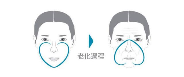 彤顏診所-年輕象徵-心型臉-老化-肌膚鬆弛下垂-倒心型-皺紋-法令紋