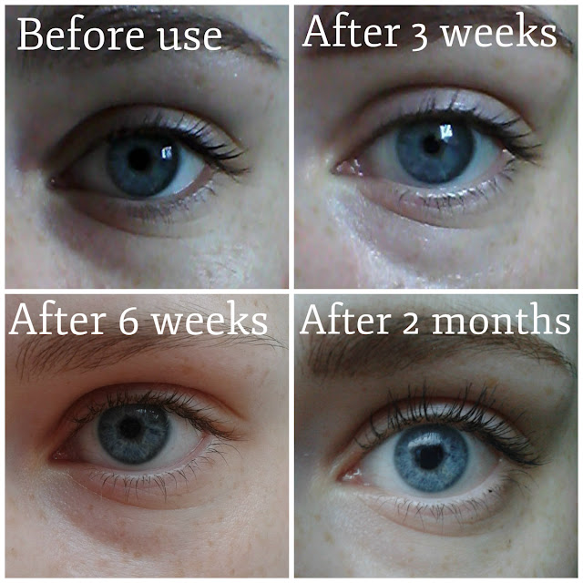 Yes To Grapefruit Eye Cream results