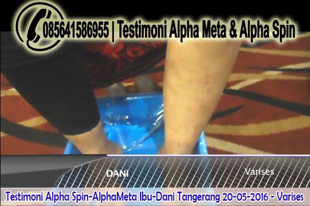 Alpha Meta & Alpha Spin | Testimoni Varises | Ibu-Dani Tangerang