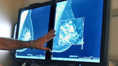 Half of breast cancer patients experience severe side effects