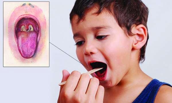 Dampak Penyakit Difteri