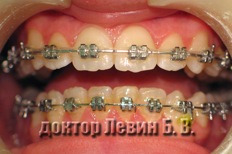 Фотография иллюстрирует результаты ортодонтического лечения через 20 месяцев.