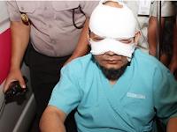 Polisi Belum Dapat Petunjuk Soal Pelaku Penyiraman Air Keras Novel Baswedan