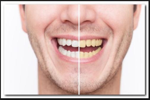 Cara Memutihkan Gigi Dengan Baking Soda Racikan Sendiri Aliems