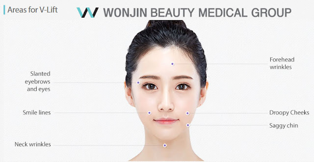 Why The Best Lifting Is In Wonjin Plastic Surgery