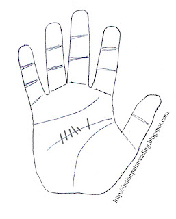 यदि व्यक्ति के हाथ में  मस्तक रेखा कई छोटी छोटी रेखाओ से कटी हो तो व्यकि को सिरदर्द कि शिकायत रहती है।