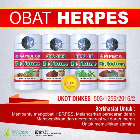 cara menghilangkan herpes