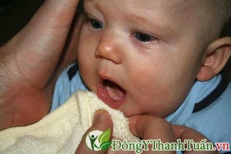 Đến Bác Sĩ Để Được Tư Vấn, Tìm Nguồn Gốc Bệnh Hôi Miệng Ở Trẻ Em