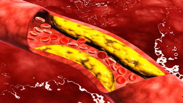 نصائح للتخلص من ارتفاع الكوليسترول والدهنيات الثلاثية