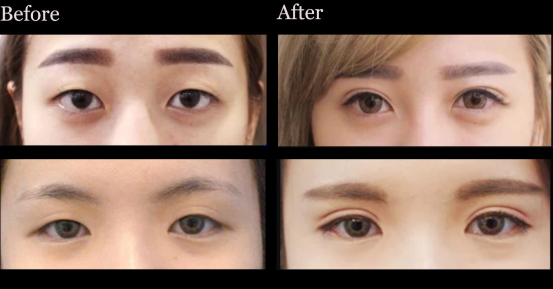 💖The Best International Eyes Surgery 💋Da Vin Ci Clinic