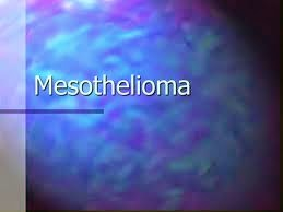 The Three Main Organs Affected by Mesothelioma