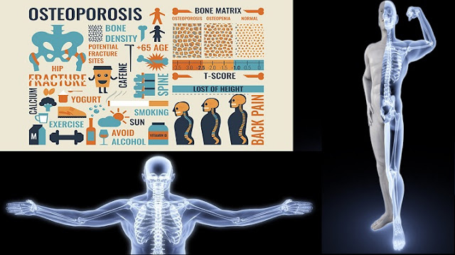 How to Prevent Osteoporosis with Nutrition and Exercise