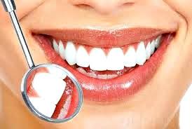 Blanqueamiento dental preguntas frecuentes
