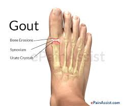 homeopathic remedies gout pain what makes high uric acid new gout medication nz