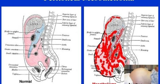 what is the survival rate for peritoneal cancer