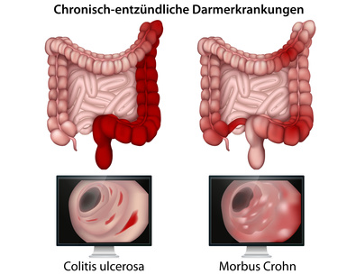 aufbauende zitat bei colitis ulcerosa