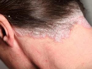 Obat eksim pada kulit kepala