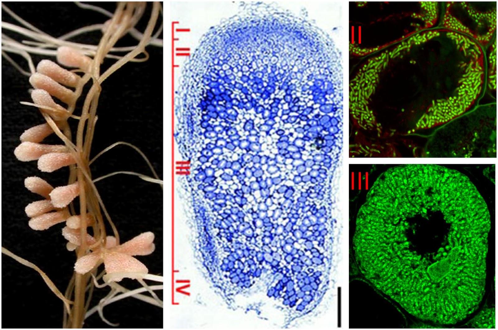 Bakteri Rhizobium, Klasifikasi, Karakteristik dan Perannya