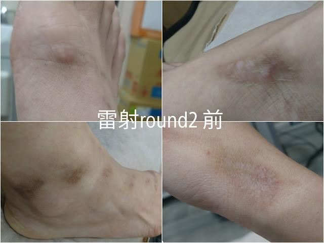 【車禍日記】醫美雷射車禍疤痕,除疤痛到翻天的雷射療程全紀錄!