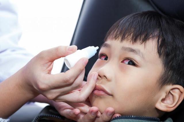 Cara Mengobati Sakit Mata pada Anak