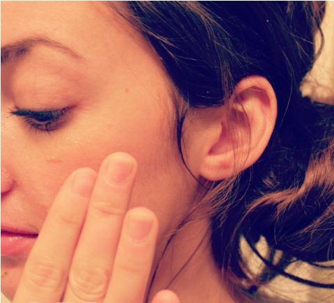Điều trị mụn hiệu quả trong 3 bước với chuối tươi