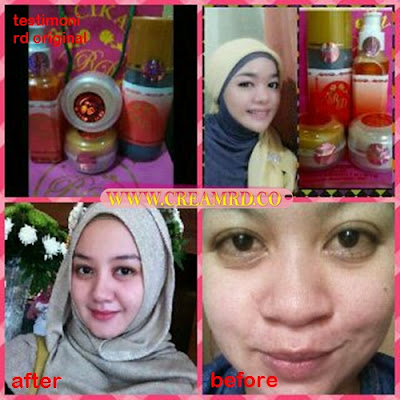 Testimoni Cream RD Orginal New Hologram