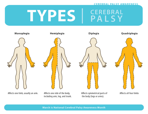 according to the chasa childrens hemiplegia and stroke association hemiplegia is a type of cerebral palsy which comes from damage to the part of the