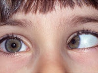 Obat Mata Juling Tanpa Operasi Aman Dan Ampuh