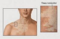 hongos en la piel, manchas blancas