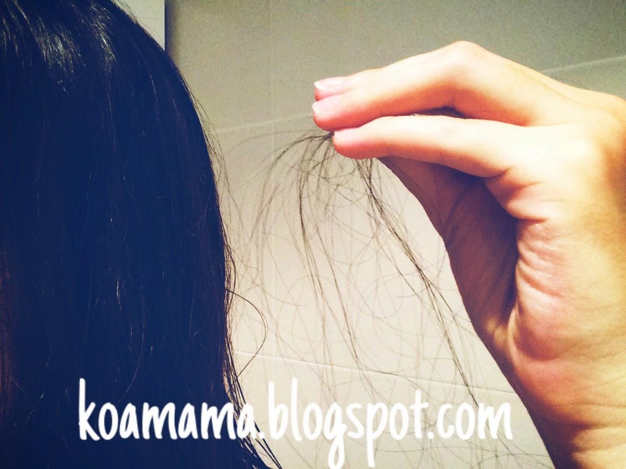 Caída Cabello loosing hair