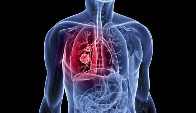 5 Gejala Kanker Paru-Paru yang Sering Diabaikan