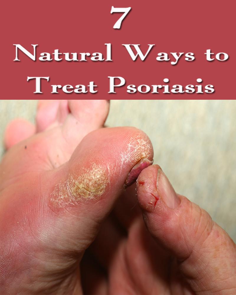 7 Natural Ways to Treat Psoriasis