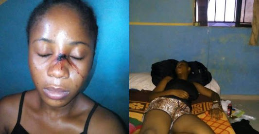 Lecturer Flees After Injuring Female Student (Photos)