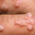 Fahamu ugonjwa wa zinaa  HPV, huathiri 80% ya watu.
