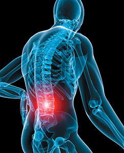 Causes and How to Prevent LBP Low Back Pain