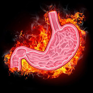 Burning Sensation In Stomach Causes, Symptoms, Diagnosis, Treatment, Home Remedies