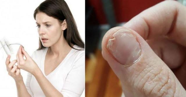 απώλεια μαλλιών, εύθραστα νύχια