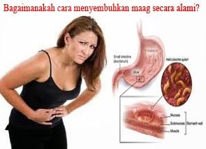 Gejala Pencegahan Dan Pengobatan Penyakit Maag Detail