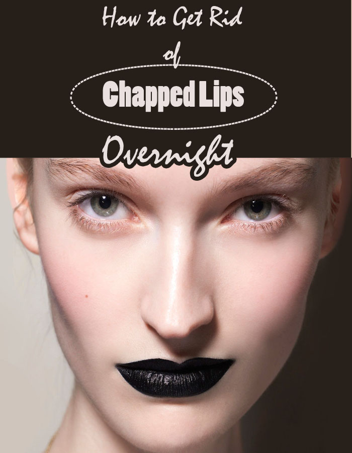 How to Get Rid of Chapped Lips Overnight
