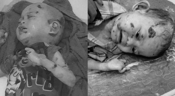 Sayu Pesakit kulit rapuh Adik Aqif, Akhirnya meninggal dunia (5 Gambar)