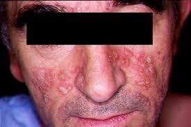 Tratamientos Contra La Psoriasis Facial