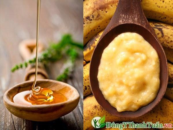 Chữa đau dạ dày bằng chuối và mật ong