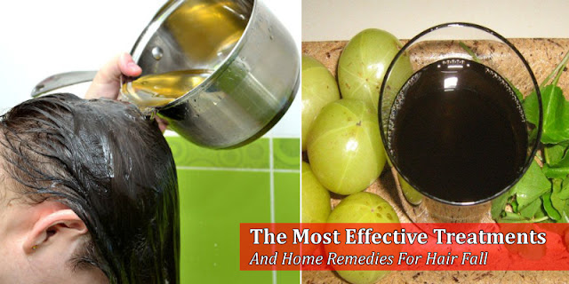 The Most Effective Treatments And Home Remedies For Hair Fall